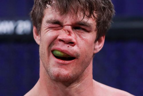 Photo: Derek Anderson broke more than just his nose against Michael Page at Bellator 258