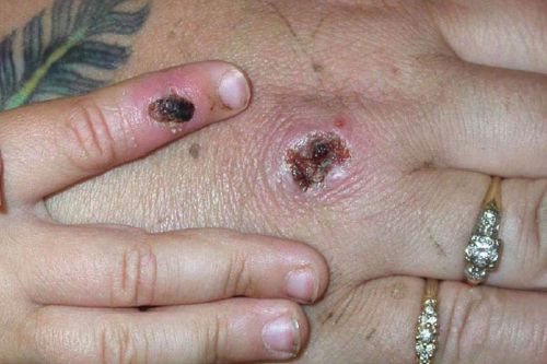 Two Monkeypox cases discovered in UK