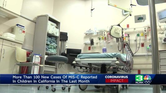California doctors see uptick in rare, serious condition in children tied to COVID-19
