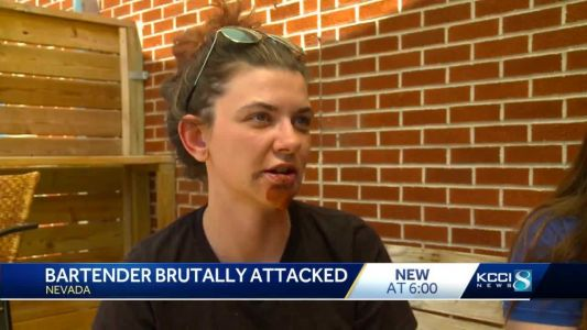 Nevada bartender begins recovery from vicious attack